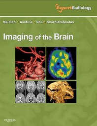 Imaging of the Brain E-Book - Librerie.coop