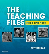 The Teaching Files: Head and Neck Imaging E-Book - Librerie.coop