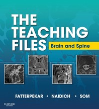 The Teaching Files: Brain and Spine Imaging E-Book - Librerie.coop