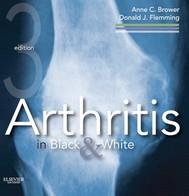 Arthritis in Black and White E-Book - copertina