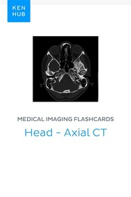Medical Imaging flashcards: Head - Axial CT - copertina