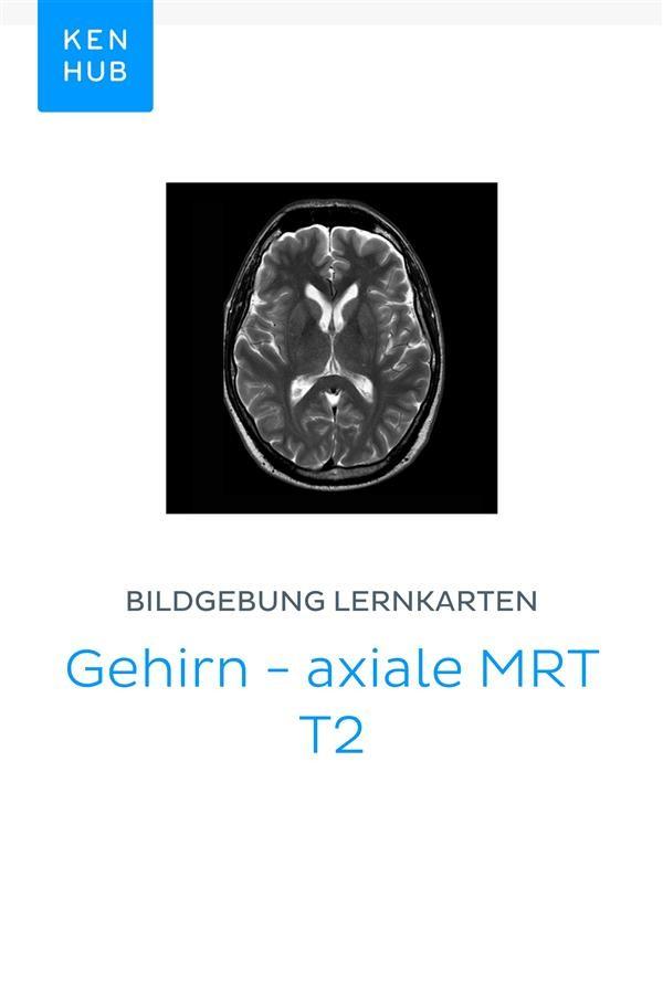 Bildgebung Lernkarten: Gehirn - axiale MRT T2, Kenhub | Ebook ...
