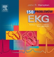 150 Problemów EKG - copertina