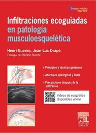 Infiltraciones ecoguiadas en patología musculoesquelética - copertina
