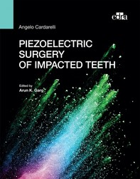 Piezoelectric surgery of impacted teeth - Librerie.coop