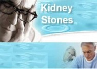 51 Tips for Dealing Kidney Stones - copertina