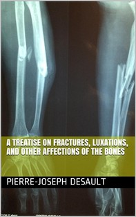 A Treatise on Fractures, Luxations, and other Affections of the Bones - Librerie.coop