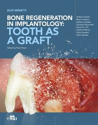 Bone regeneration in implantology: tooth as a graft - Librerie.coop