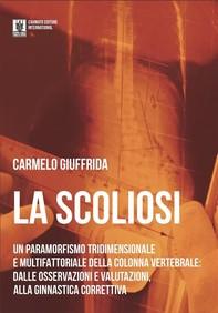 La Scoliosi - Librerie.coop